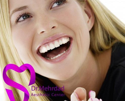بدست آوردن لبخندی زیبا و بدون نقص