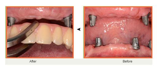 عکس دندان سرامیکی