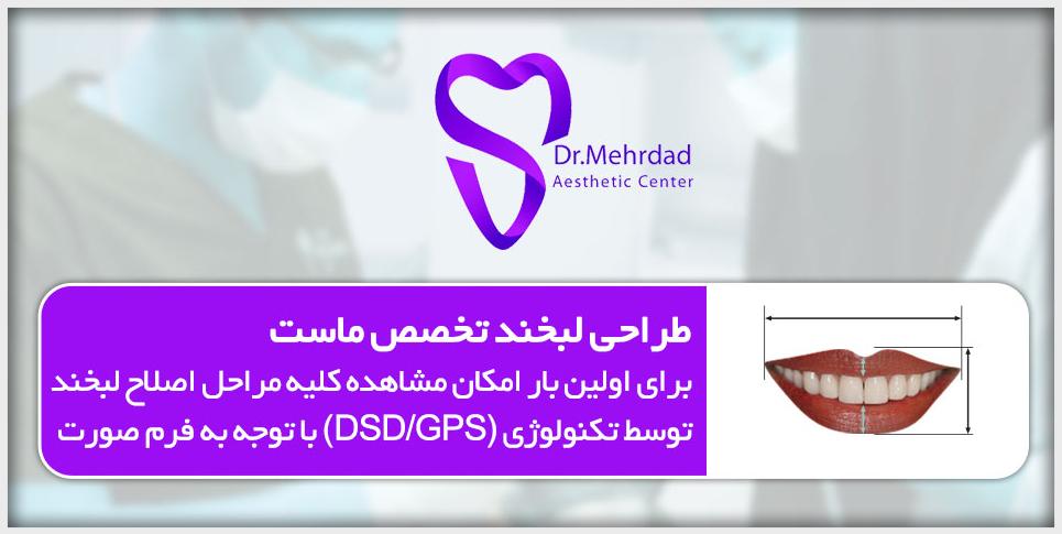 طراحی لبخند دکتر مهرداد