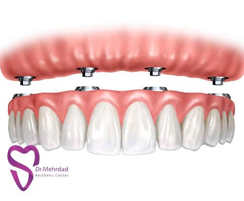 استفاده از پیوند استخوان برای ایمپلنتهای دندانی