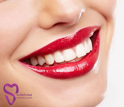 راه های سفید کردن دندان