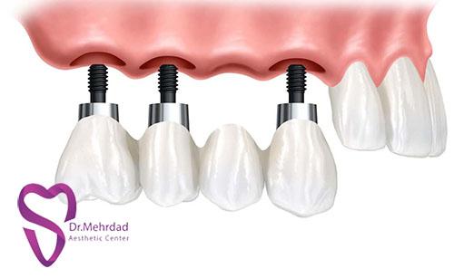لزوم استفاده از ایمپلنتهای دندانی
