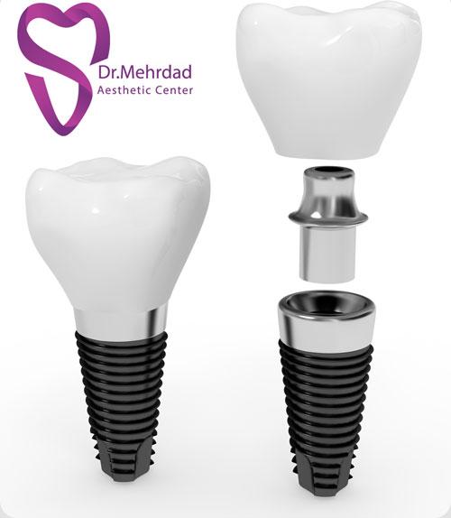 قیمت ایمپلنت دندان