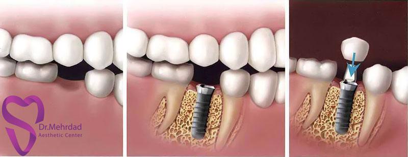 کاشت ایمپلنت بعداز کشیدن دندان
