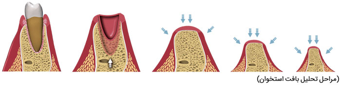 پیوند استخوان جراحی ایمپلنت